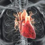 Boala cardiaca rara, descoperita la Arad